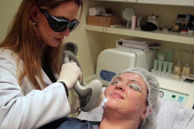 silvia zimbres, doutora, silvia, clareamento, sardas, pele, facial, cuidados faciais, clareamento de sardas, sardenta, luz pulsada, laser, doux, dermatologia